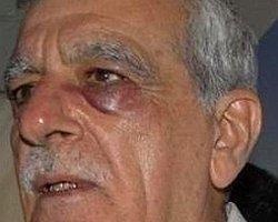 Ahmet Türk Hastaneye Kaldırıldı