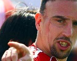"""Deschamps: """"Ribery İçin Çok Özel Bir Maç"""""""