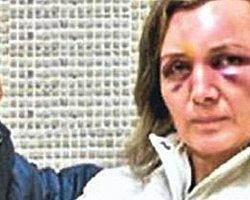 """""""Ailenin Korunması ve Kadına Karşı Şiddetin Önlenmesine Dair Kanun Tasarısı"""" TBMM'de Kabul Edildi"""