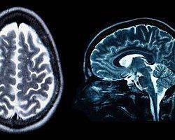 'Beyin Yazılımlarında' Büyük Hata