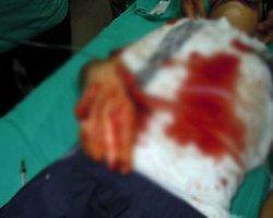Polise Atacağı Bomba Elinde Patlayan Çocuğa 15 Yıl Hapis İstendi