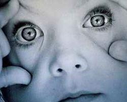 Göz Tembelliği Nedir? Nasıl Giderilir?