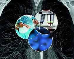 Kilo Kaybı Kanser Riskini Azaltıyor