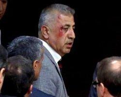 Ak Parti'li Vekil Meclis'teki Kavgayı Anlattı