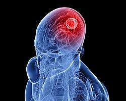 Kanserli Tümör Raylı Sistem'le Yok Edilecek