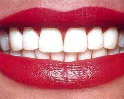 Bembeyaz Dişler İçin 7 Basit Yöntem