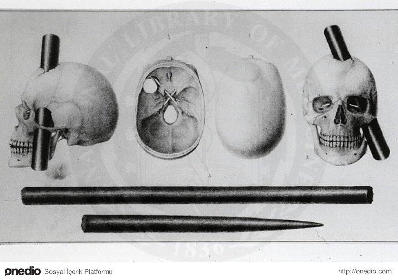 phineas gage and emotional intelligence 1 (1848, 1868) described severe emotional changes in phineas gage but emphasized that no intellectual impair-ments were observed he clearly pointed out that neither his memory nor his intelligence were compromised by the brain lesion harlow  figure 1 trajectory of the bar in phineas gage's skull, according to harlow (1848) (retrieved from .