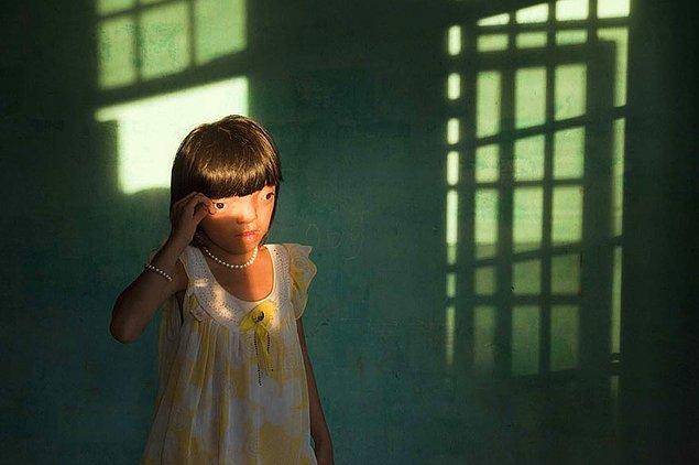9. Acı; Nguyen Thi Ly 9 yaşında ve ''Agent Orange'' mağduru.