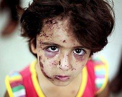 UNICEF: 'Gazze'de 370 Binden Fazla Çocuğun 'Psiko-Sosyal' Yardıma İhtiyacı Var'