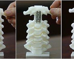 Omurga cerrahisinde dünyanın ilk 3D baskılı omurgası kullanıldı