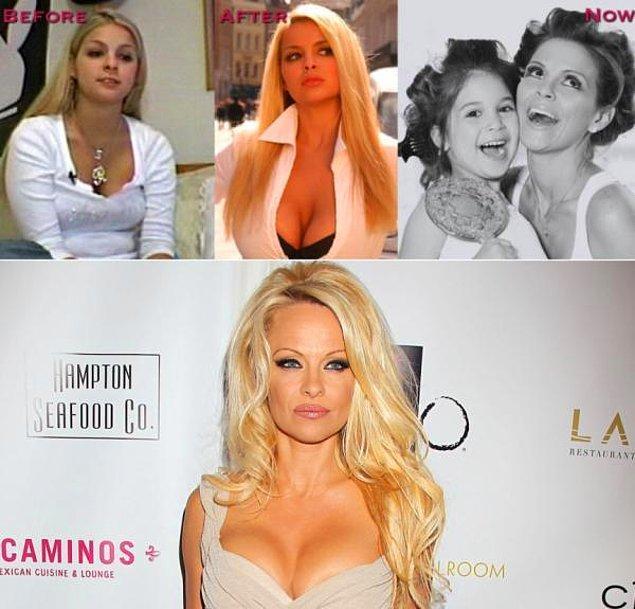 9. Sha Ross > Pamela Anderson