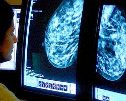 'İngiltere'de Nüfusun Yarısı Kanser Olacak'