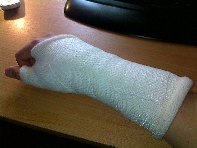 10. Bacağınız ya da kolunuz kırıldığında kendi özel işlerinizi halledemediğiniz an
