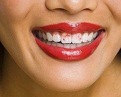6-Dişlere bulaşan rujlar !