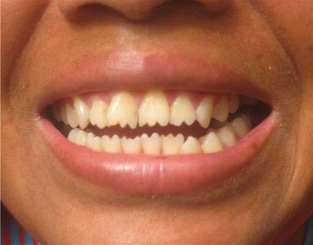 1. Diş sivriltme