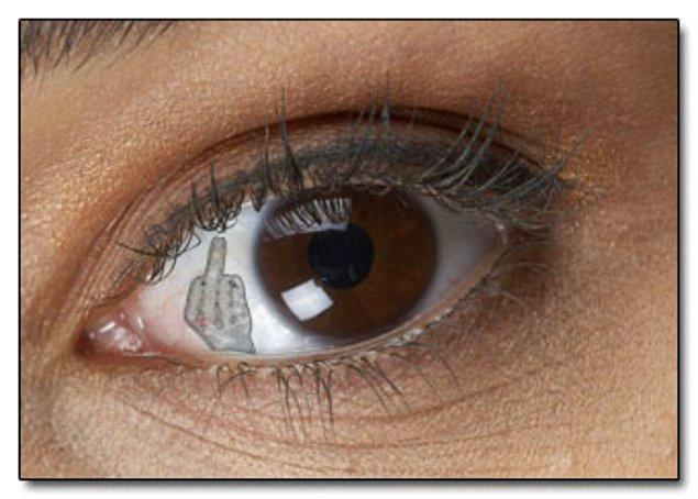 8. Göz küresi implantı