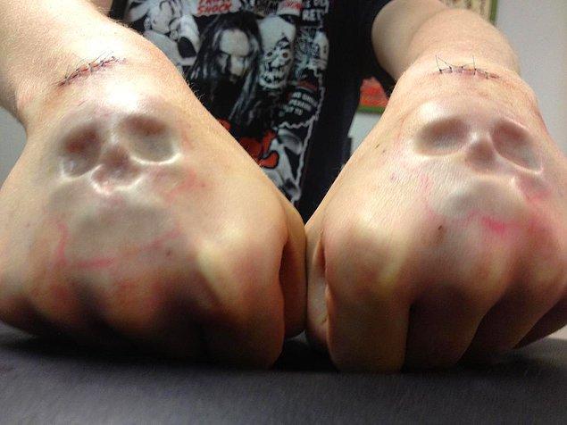 10. Deri altı implantı