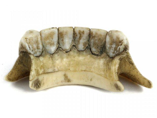 14. Orta Çağ'da ölü askerlerin dişlerinden protezler yapılırdı.