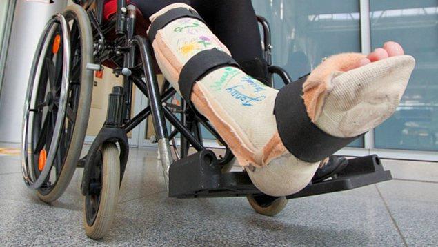 Aynı kadın defalarca bacaklarına zarar verip kestirmeye çalışmış, ama başarısız olmuş. Sonunda kangren riski ortaya çıkınca bir doktor tek bacağını kesmiş.