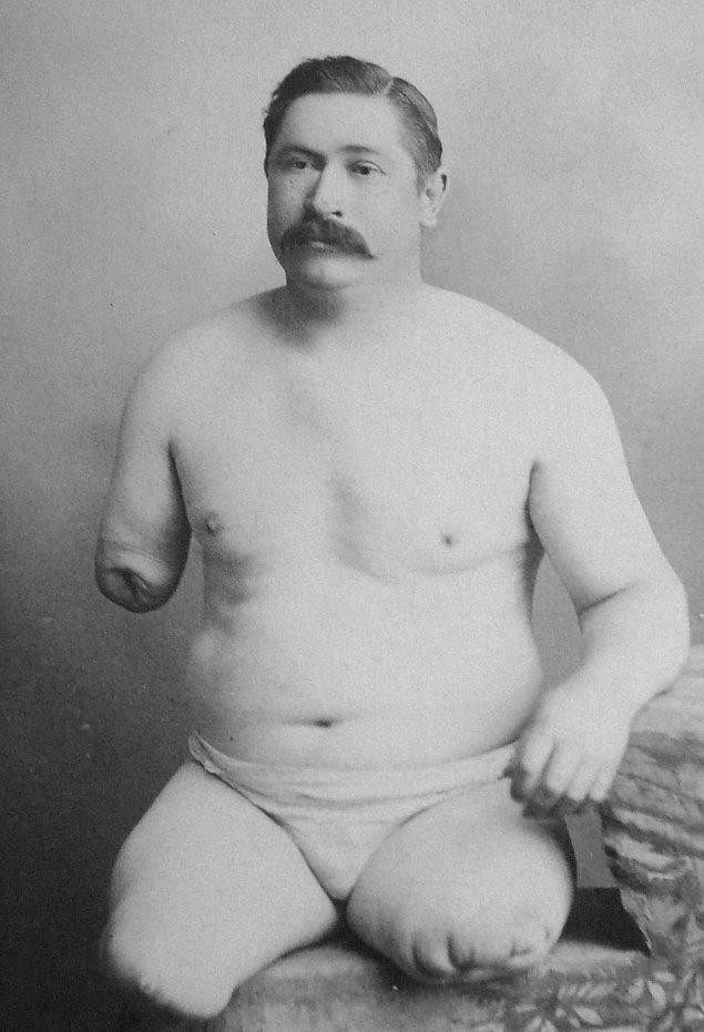 Çocukluğundan beri bir bacağından kurtulmak isteyen bir adam gitmedik psikolog, psikiyatr bırakmamıştır.