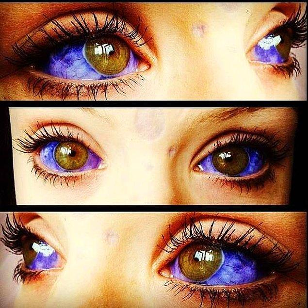 2. insanın organları arasında en hassası olan gözlerine akıl almaz eylemler yapıyor.