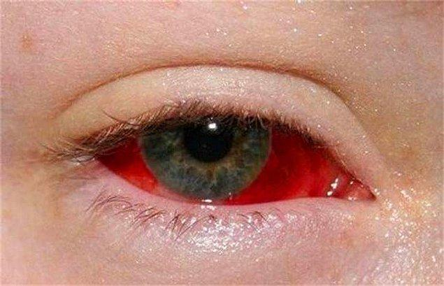15. Kanlanmış bir göz.