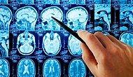 Parkinson, Beyin Hücrelerini Aşırı Isıtarak Öldürüyor