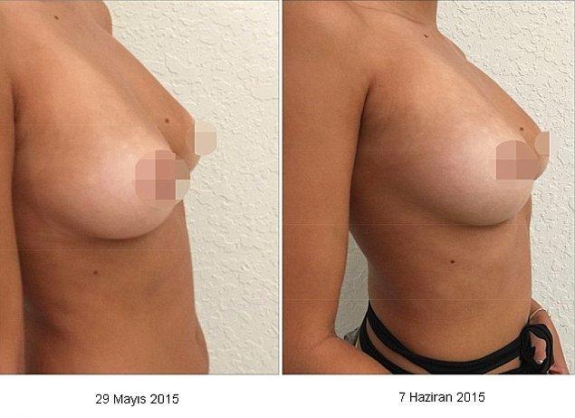 Elde ettikleri sonuç inanılmazdı: Jelena'nın göğüsleri tam tamına bir beden büyümüştü!