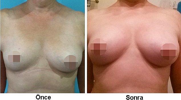 Milić bu sütyenin, göğüslerdeki kan dolaşımını artırdığını ve bu sayede büyümeyi sağladığını iddia ediyor.