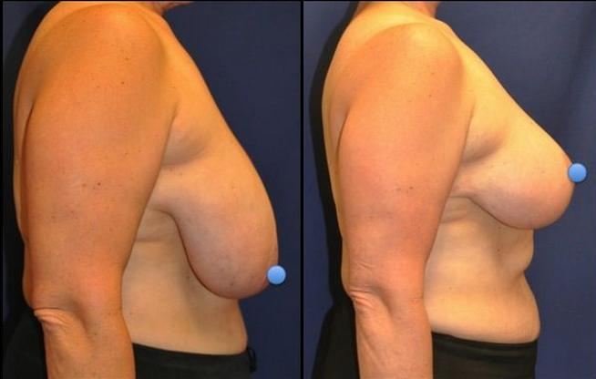 breast lifts before and after pictures  613391
