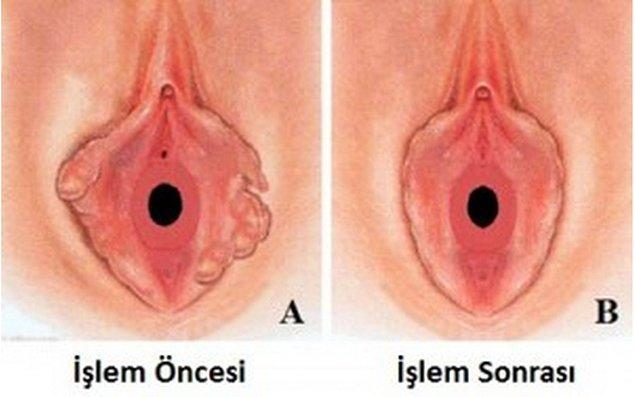 16. Labiaplasty