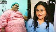 Hayata Yeniden Başlayanlar Kulübü: Obezite Cerrahisi