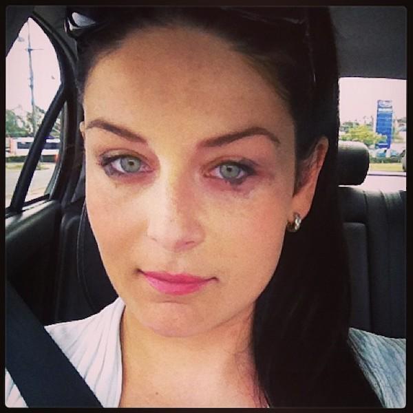 Eye makeup allergies