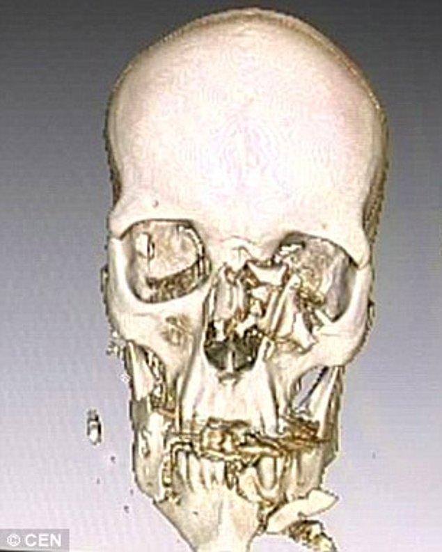 Saldırıdan tuz buz olmuş bir kafatası ve parçalanmış bir yüzle de olsa kurtulmayı başarmıştı.