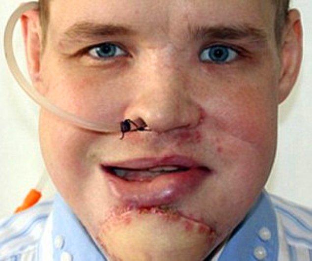 Sonuç olarak, yoğun tıbbi müdahalelerin ardından yüzü toparlanmış gözüküyor.