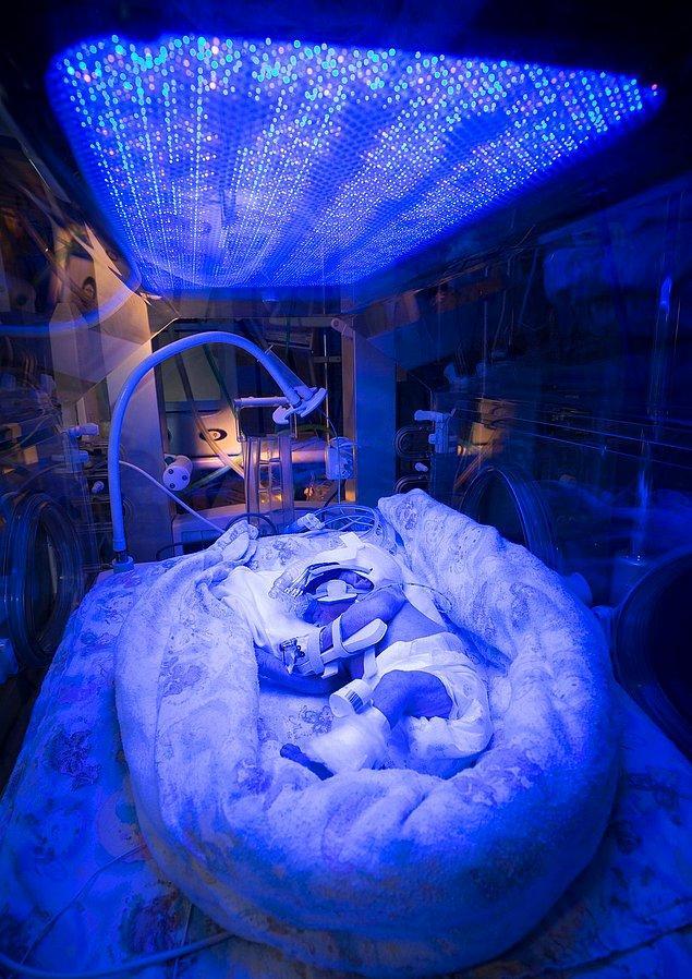 2. Klinik Ortamda Mükemmel Fotoğrafçılık Ödülü - Işık Tedavisi Gören Prematüre Bebek