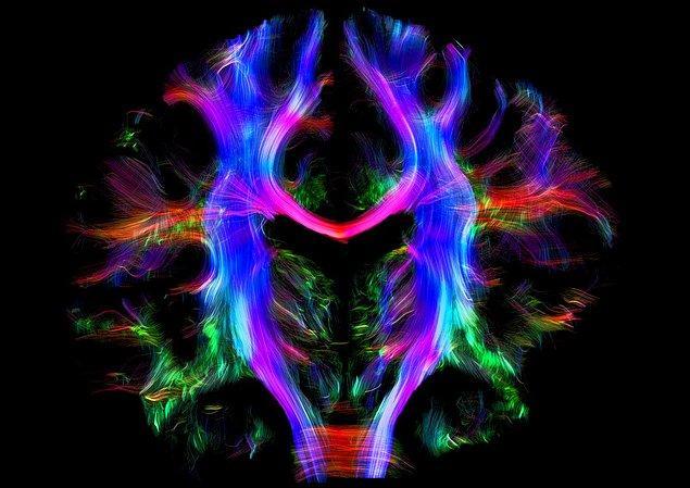 4. Beyin Elektriksel Sinyalleri