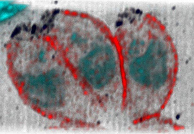 19. Toksoplazma gondii