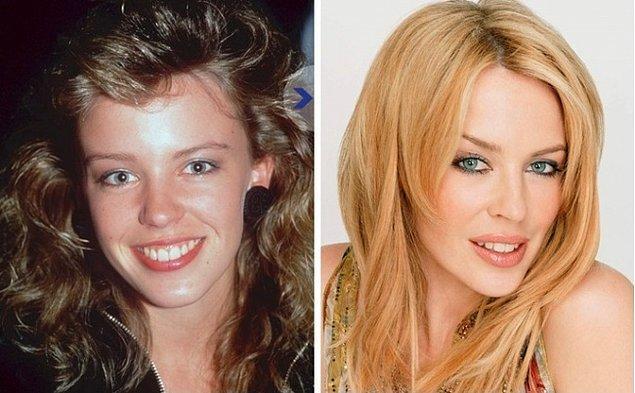 13. Kylie Minogue