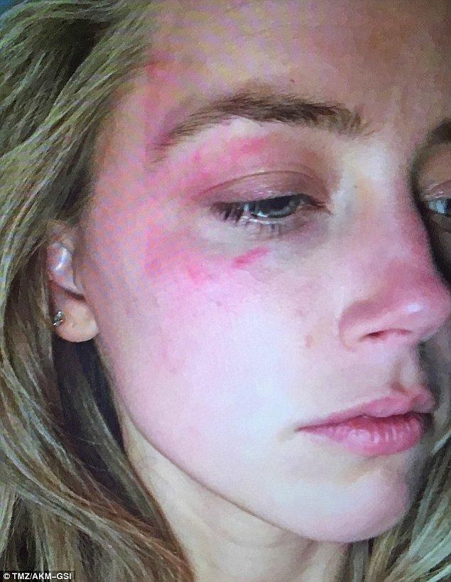 Amber'ın iddiasına göre, geçtiğimiz cumartesi günü Depp ona şiddet uygulamış, hatta yüzüne telefonunu fırlatmıştı!