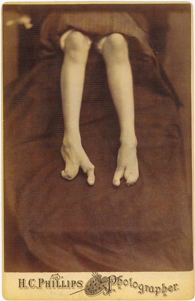13. Ayak deformasyonu olarak bilinen ve doğumda ortaya çıkan bu rahatsızlık da müzede yerini almış.
