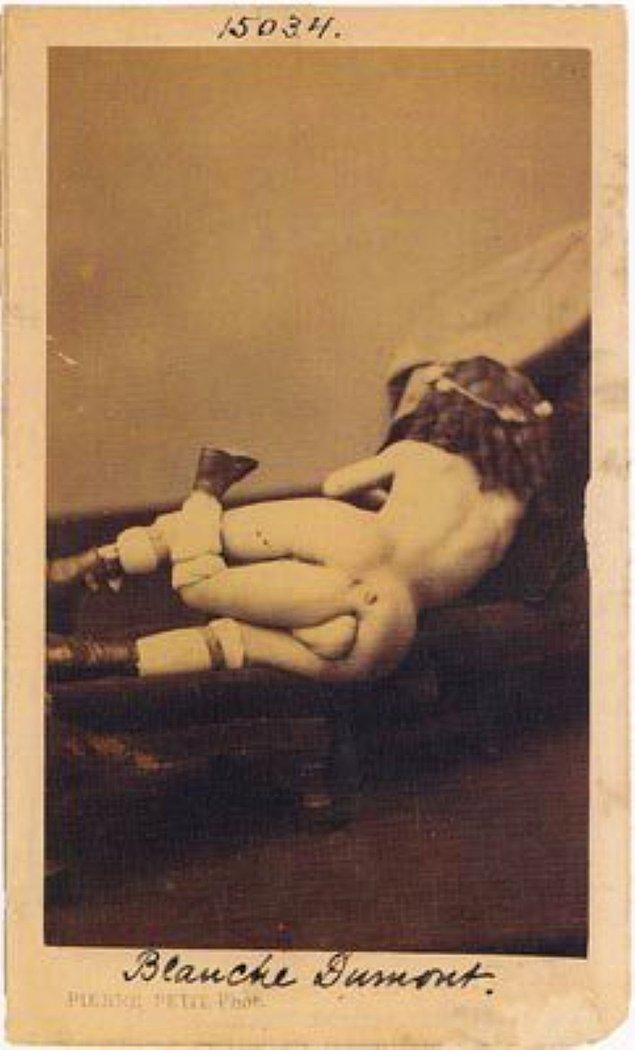 14. Müzede sergilenen fotoğraflardan birisi de Juan Baptista Dos Santos'a ait, 3 ayaklı ve 2 penisli olarak bilinen bir adama.