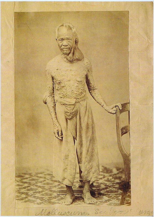 16. Vücudunun her yeri tümörlerle dolmuş bir adam.