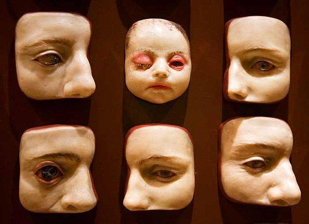 5. Ancak bu müzenin temel amacı tıbbi araştırmalar için bir örnek oluşturmak olduğundan hastalıklara ait birçok balmumu heykel de bulunuyor.