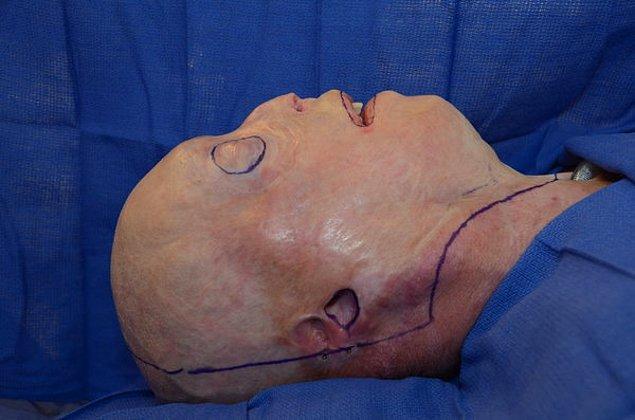 Yüzü işaretlenen Hardison, 26 saat sürecek olan operasyona artık hazırdır.