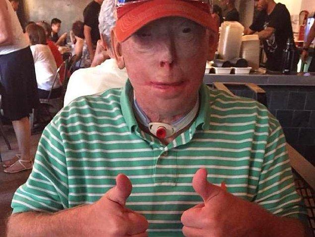 Hardison, uzun süre dışarı çıkmaya cesaret edemez. Dışarı çıktığı zaman ise beyzbol şapkası ve güneş gözlüğü ona her zaman eşlik eder.