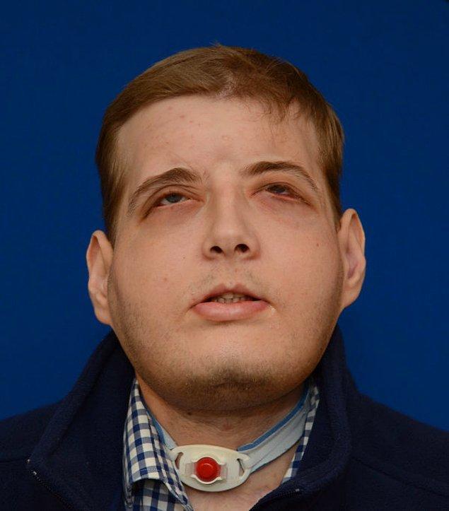 Patrick Hardison'ın yüzü, ameliyattan 6 ay sonra bu şekilde görünmeye başlar.