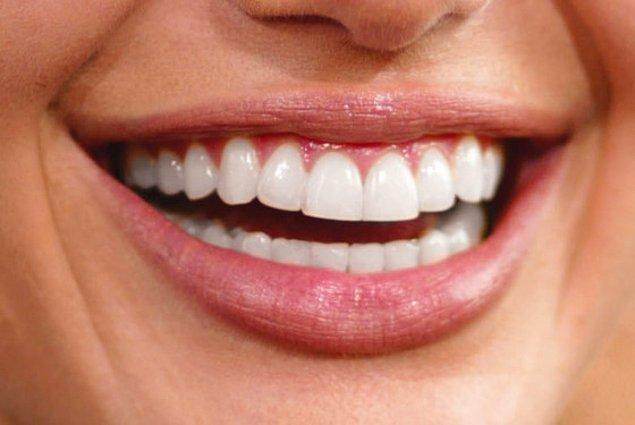 4. Öpüşmek, diş çürümesine sebep olabilmektedir.