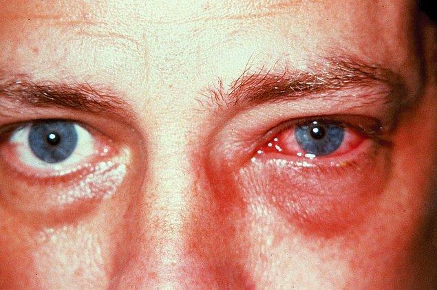 1. Adenoviral Hastalıklar