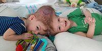 Minik Kardeşler Hayata Tutundu! Yapışık İkizleri Birbirinden Ayıran 20 Saatlik Başarılı Operasyon